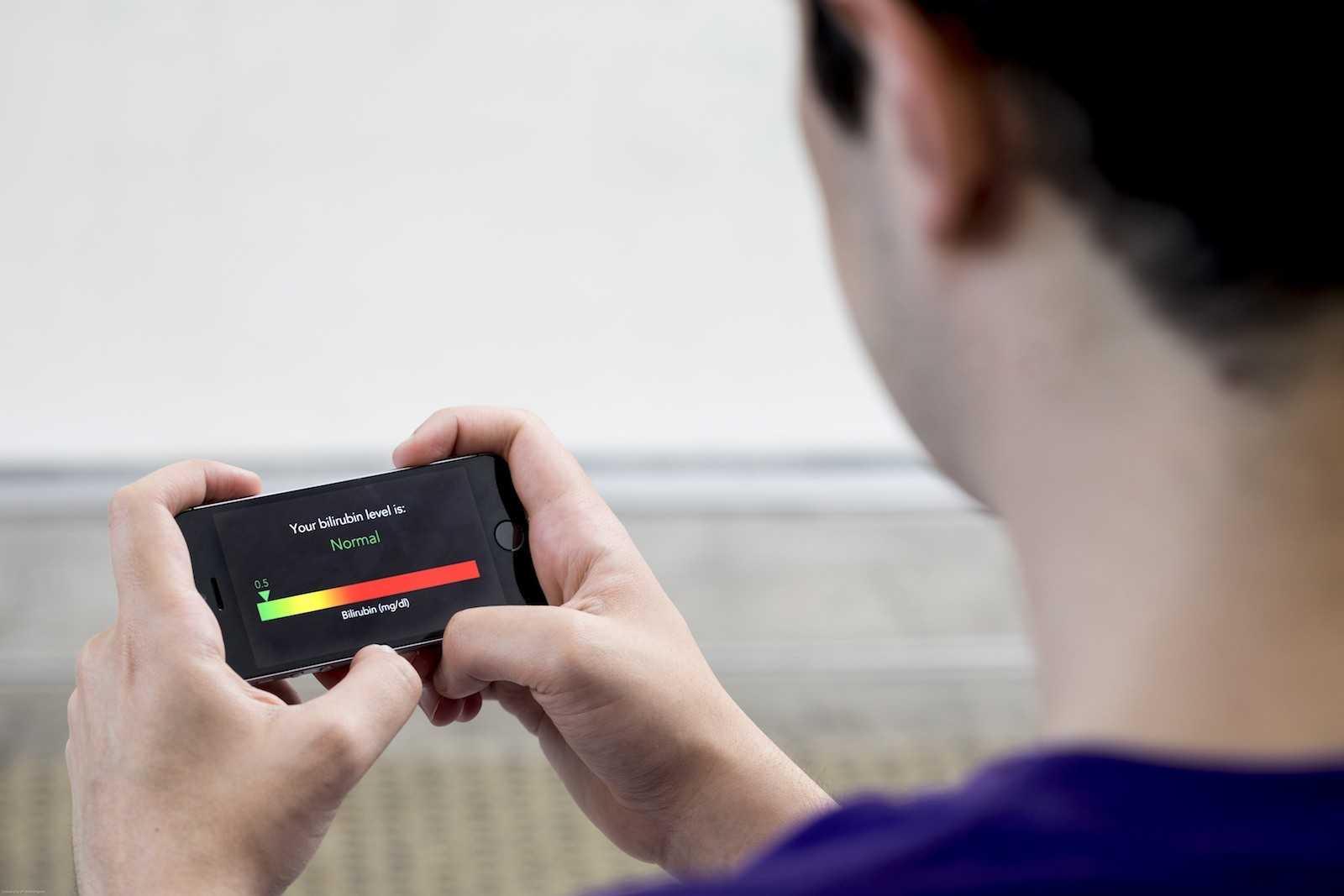 dpaeks Создано мобильное приложение, которое распознаёт рак поджелудочной поселфи